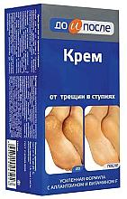 Düfte, Parfümerie und Kosmetik Creme für rissige Füße - Do i Posle