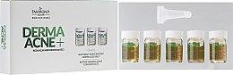Düfte, Parfümerie und Kosmetik Aktives Normalisierungskonzentrat gegen Akne - Farmona Professional Dermaacne+ Active Normalizing Concentrate