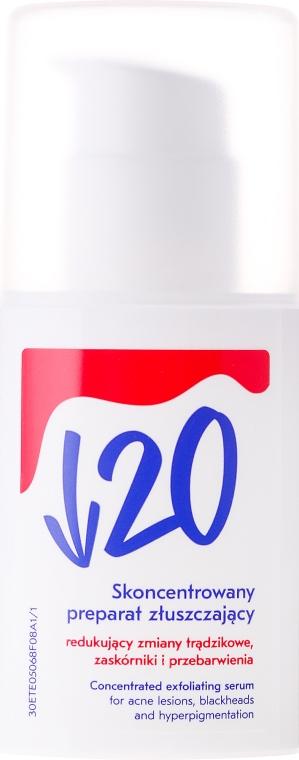 Anti-Akne Peelingserum für das Gesicht - Under Twenty Anti Acne Concentrated Exfoliating Serum — Bild N2